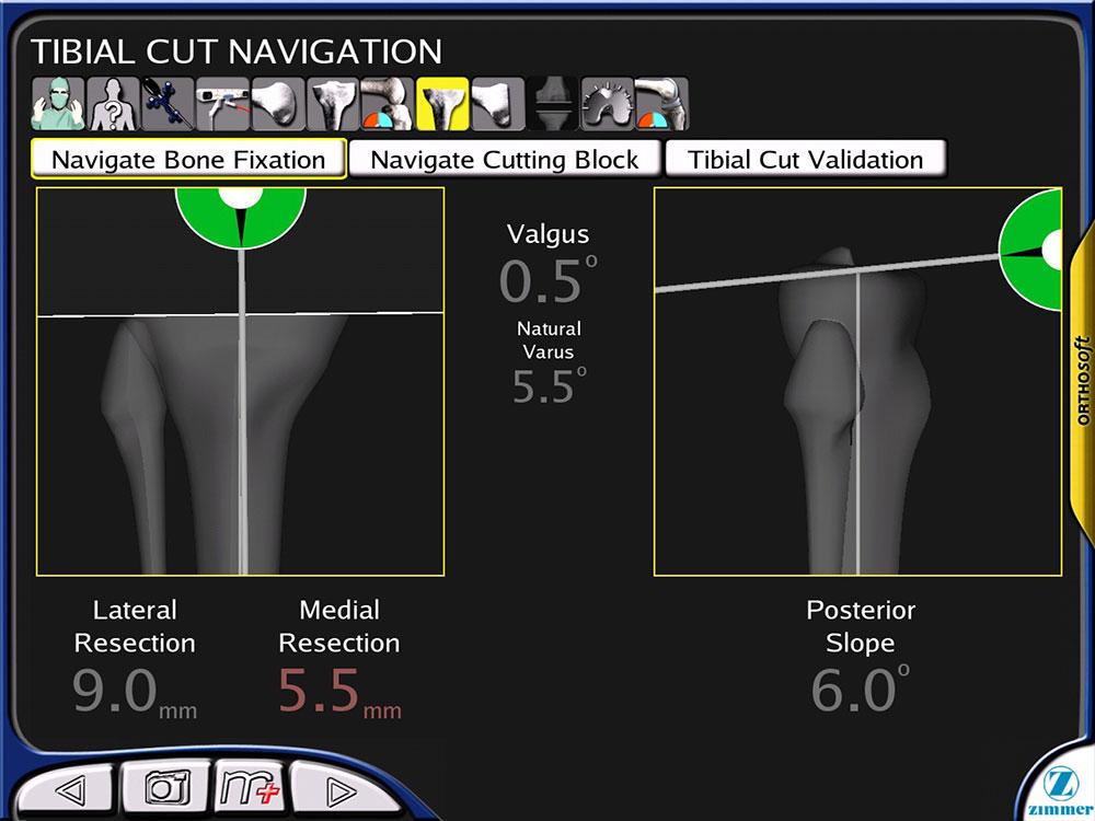 Robotic Knee Replacement Adelaide - Arthritis Specialist
